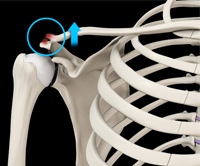 AC Joint Dislocation