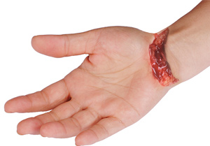 Laceration Hand