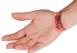 tendon nerve lacerations nsw flexor tendon injuries nsw