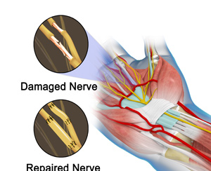 Microsurgery Nerve Repair/Nerve Grafting