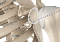 Arthroscopic Stabilization of Shoulder
