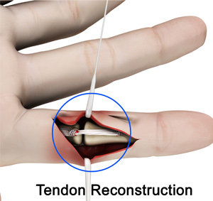 Tendon Reconstruction