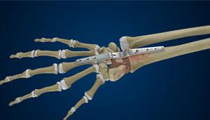 Total Wrist Arthrodesis