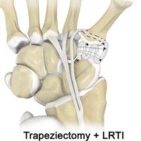 Trapeziectomy + LRTI