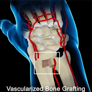 Vascularized Bone Grafting